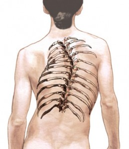 As stated, the goals of scoliosis surgery include: stop the curve(s) from ...